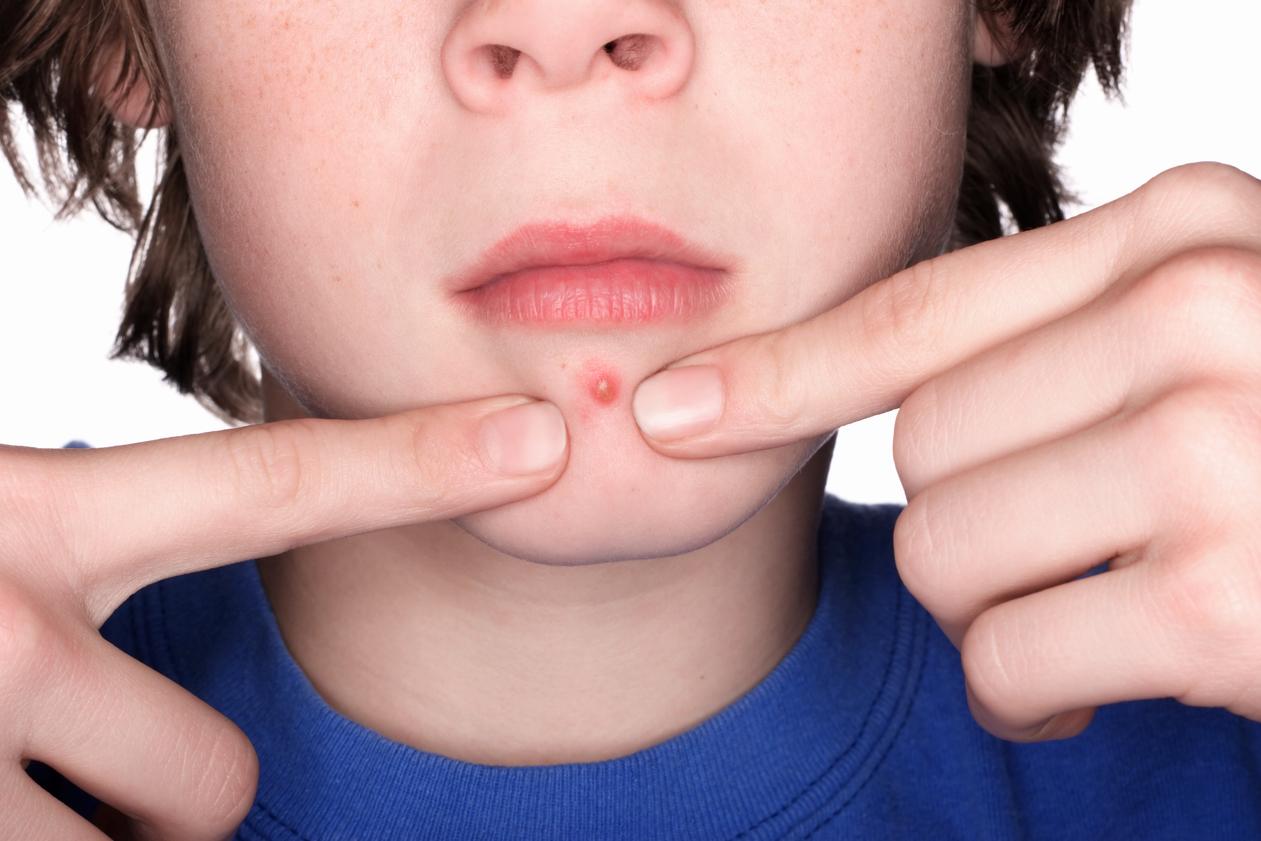 Bebeklerde Akne Tedavisi Nasıl Yapılır Tıklayınız