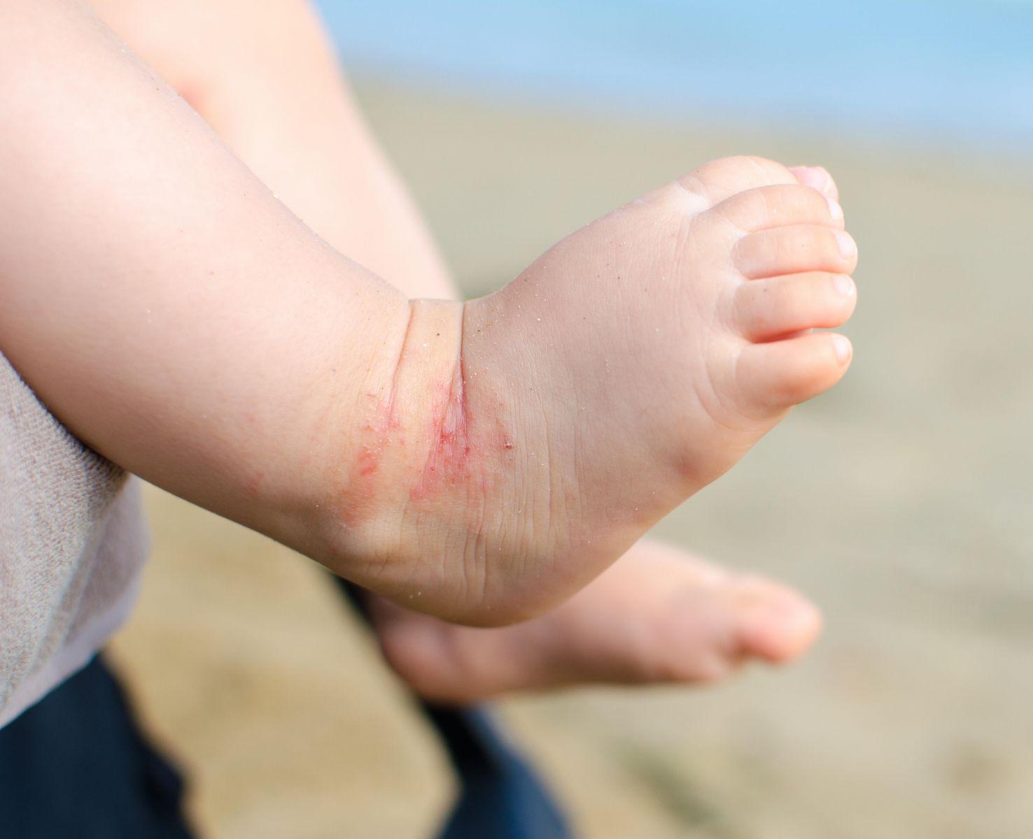 Çocuklarda Egzama Ve Doğal Tedavi Yolları
